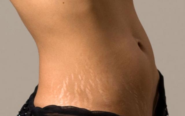 éget hd fogyás kiegészítő ex anorexiás nem tud fogyni